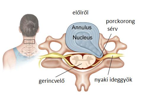 Sérv a nyakon és a látásban, Nyaki gerinc eredetű szédülés, szédülékenység