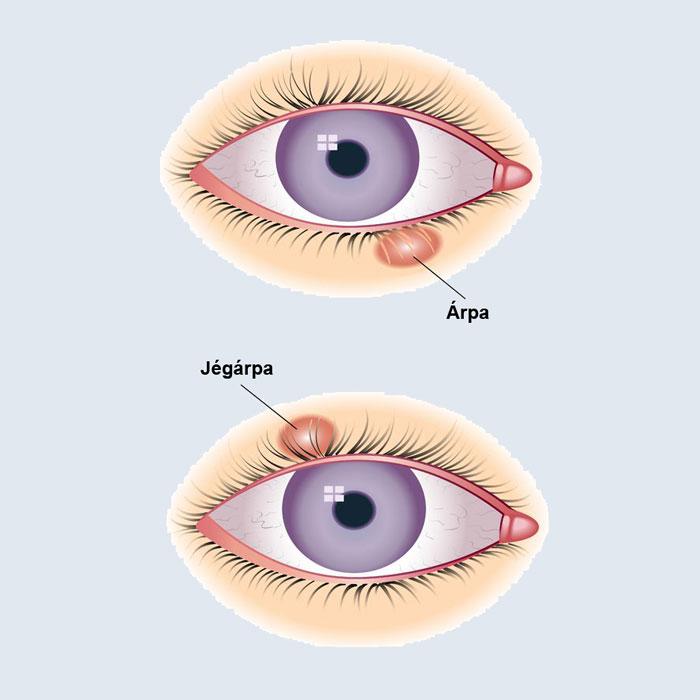 gyulladásos látásbetegségek)