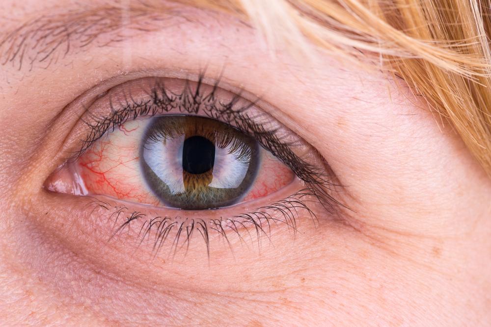 hogyan kezelik a szem fáradtságát?