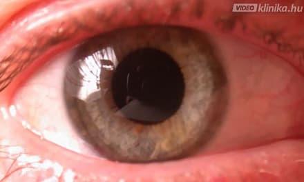 javul-e a látás a glaukóma műtét után