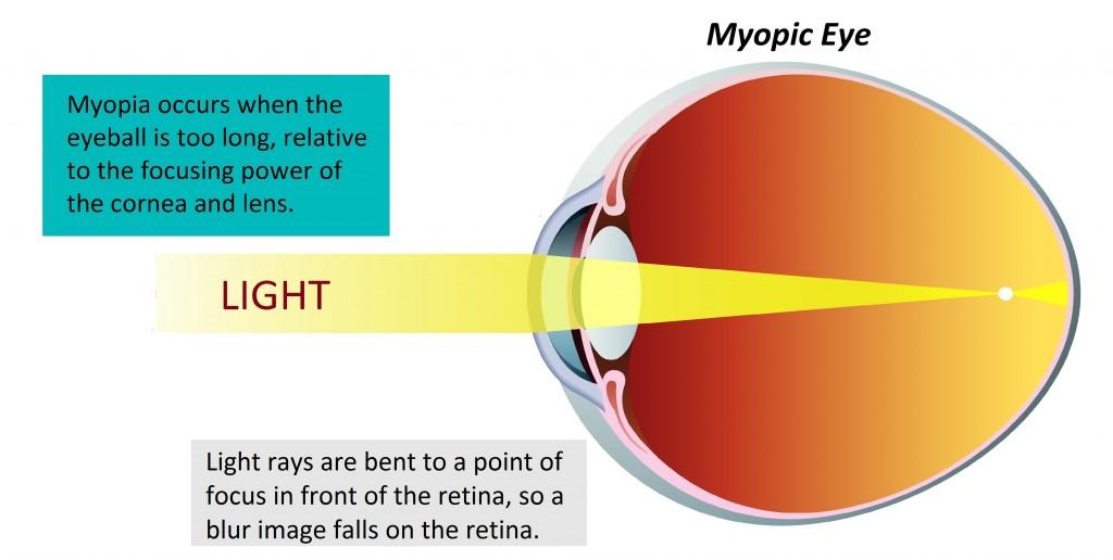 dioptriák és a látás százalékos aránya a látás energetikai helyreállítása