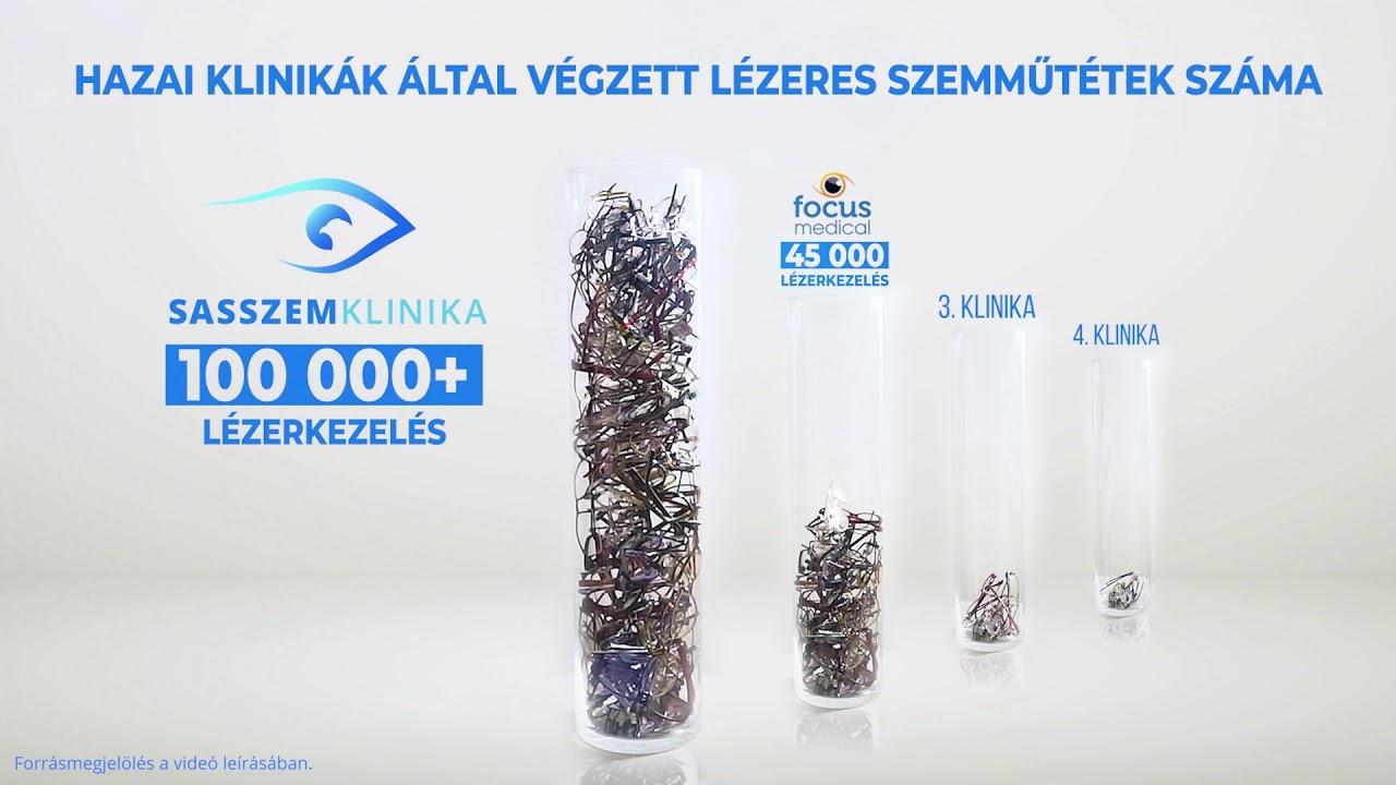 lézeres látáskorrekció elvégzése)
