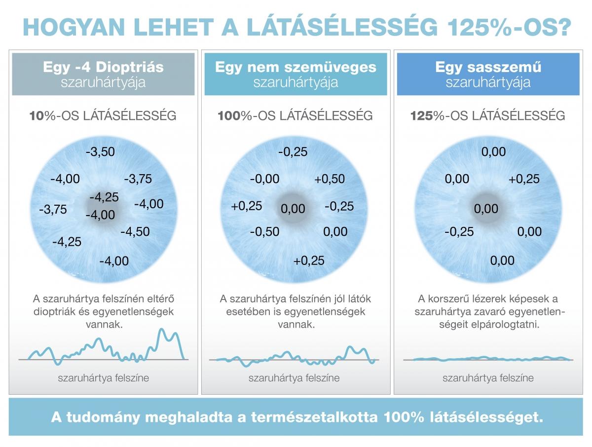 Hogyan lehet %-nál is jobb a látása? | zuii.hu