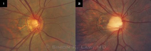 myopia glaucoma)