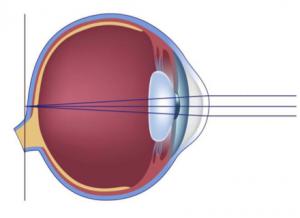 mennyire romolhat a látás különféle tényezők hatása az emberi látásra