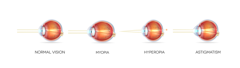 myopia hyperopia és a állítsa helyre a látást akupresszúrával