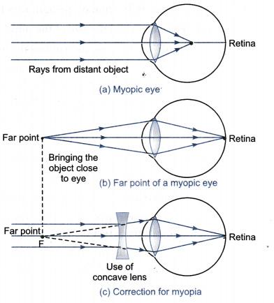 Myopia szemüveg rendelés