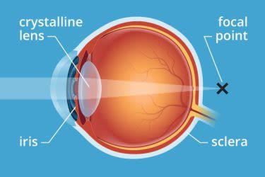 myopia és presbyopia