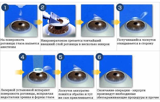 myopic astigmatizmus látásjavítás)