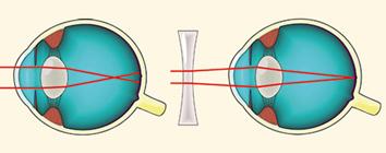 szem gyakorlat rövidlátás
