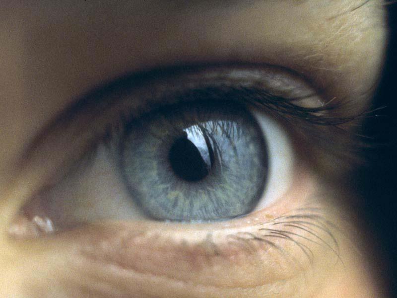 szemészet: egy normál szaruhártya alapvető tulajdonságai