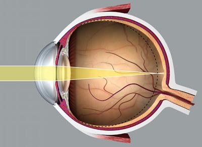 veleszületett szerzett myopia